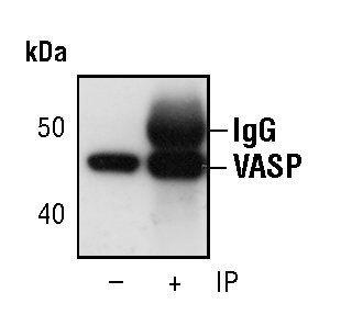 VASP Antibody (MA5-14982) in Immunoprecipitation