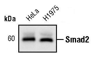 SMAD2 Antibody (MA5-14996) in Western Blot