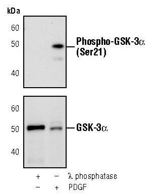 Phospho-GSK3 alpha (Ser21) Antibody (MA5-15021)
