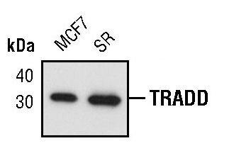 TRADD Antibody (MA5-15063) in Western Blot