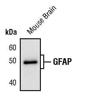 GFAP Antibody (MA5-15086) in Western Blot
