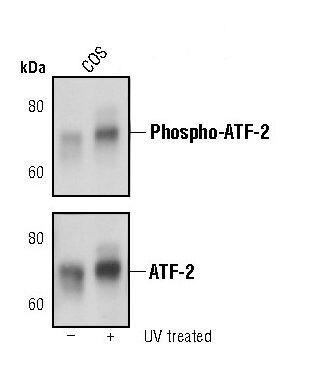 Phospho-ATF2 (Thr71) Antibody (MA5-15088)
