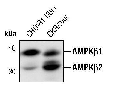 AMPK beta-1,2 Antibody (MA5-15090) in Western Blot