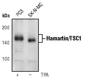 TSC1 Antibody (MA5-15104) in Western Blot