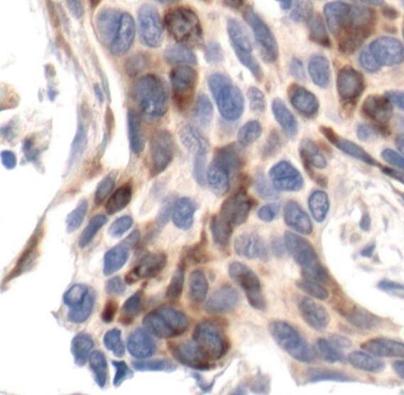 Phospho-S6 (Ser235, Ser236) Antibody (MA5-15140) in Immunohistochemistry