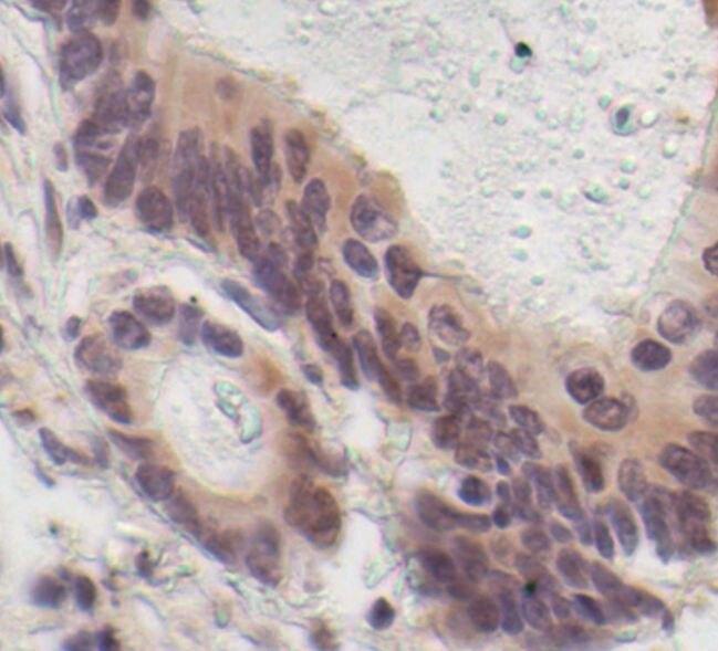 p70 S6 Kinase Antibody (MA5-15141) in Immunohistochemistry