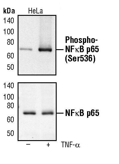 Phospho-NFkB p65 (Ser536) Antibody (MA5-15160) in Western Blot