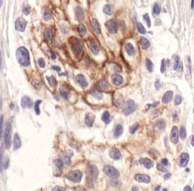 Phospho-ErbB3 (Tyr1289) Antibody (MA5-15166)