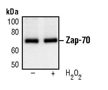 ZAP70 Antibody (MA5-15180) in Western Blot