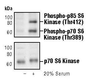 Phospho-p70 S6 Kinase (Thr389) Antibody (MA5-15202) in Western Blot