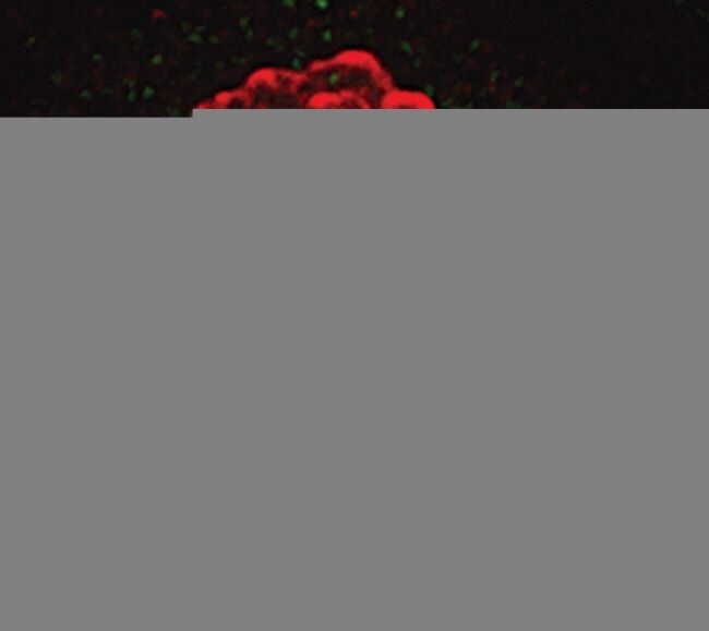 Phospho-Histone H3 (Ser10) Antibody (MA5-15220) in Immunofluorescence