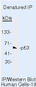 p53 Antibody (MA5-15244) in Immunoprecipitation