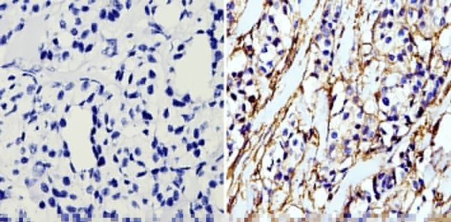 beta Actin Loading Control Monoclonal Antibody (BA3R)