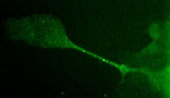 Desmoglein 3 Antibody (MA5-16025) in Immunofluorescence