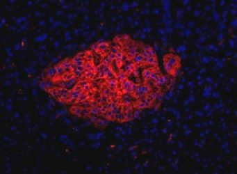 HPi1 Antibody (MA5-16126) in Immunofluorescence