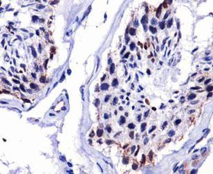 DUX4 Antibody (MA5-16147) in Immunohistochemistry