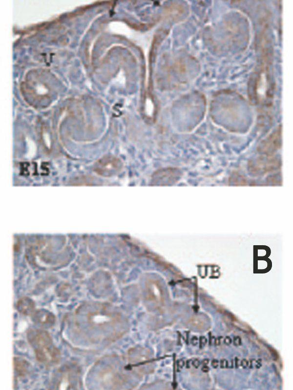 p73 delta Antibody (MA5-16183) in Immunohistochemistry