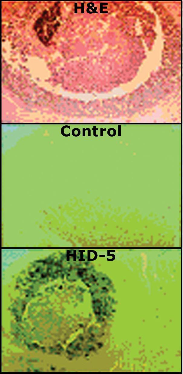 S100A7 Antibody (MA5-16199)