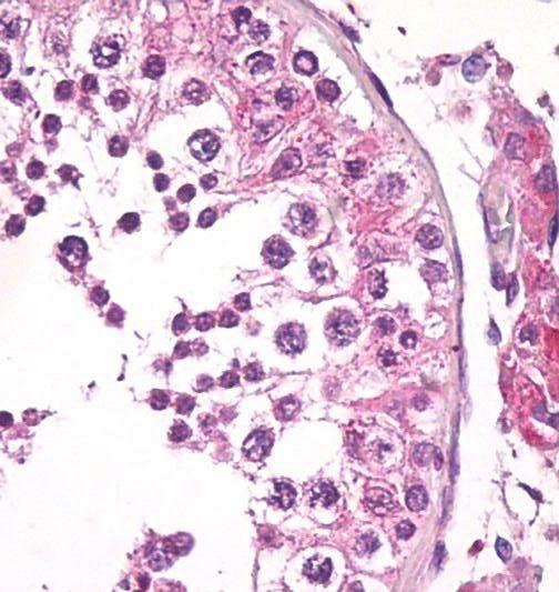 Bi-1 Antibody (MA5-16225) in Immunohistochemistry (Paraffin)