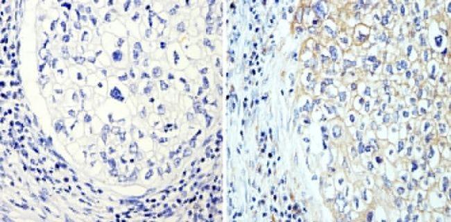 beta Tubulin Loading Control Antibody (MA5-16308-BTIN) in Immunohistochemistry (Paraffin)