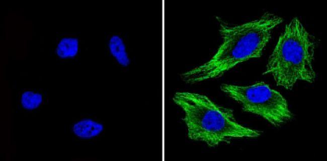 beta Tubulin Loading Control Antibody (MA5-16308) in Immunofluorescence