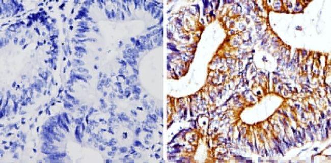 beta Tubulin Loading Control Antibody (MA5-16308) in Immunohistochemistry (Paraffin)