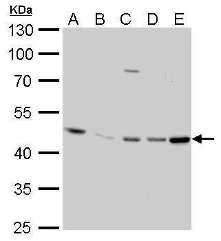EED Antibody (MA5-16314) in Western Blot