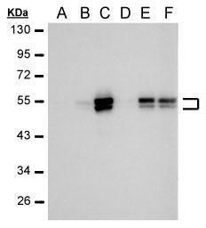 Carbonic Anhydrase IX Antibody (MA5-16318) in Western Blot