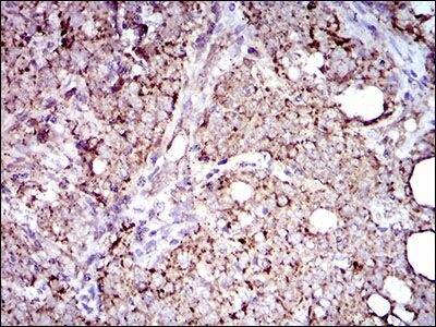 ALDH2 Antibody (MA5-17029) in Immunohistochemistry (Paraffin)