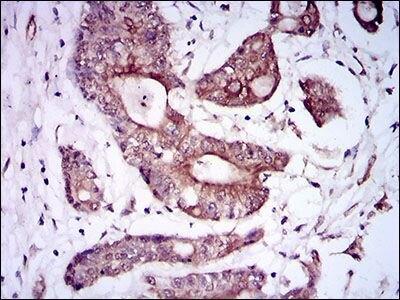 BMPR1A Antibody (MA5-17036) in Immunohistochemistry (Paraffin)