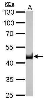 Citrate Synthetase Antibody (MA5-17265) in Western Blot