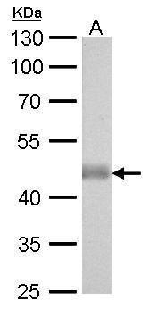 IDH2 Antibody (MA5-17271) in Western Blot