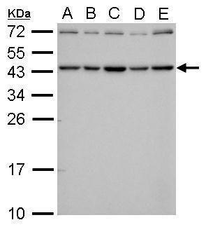 SMYD3 Antibody (MA5-17272) in Western Blot