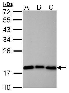 Cofilin Antibody (MA5-17275) in Western Blot