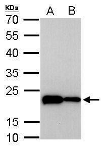 TAGLN Antibody (MA5-17276) in Western Blot