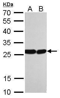 HMGB1 Antibody (MA5-17277) in Western Blot