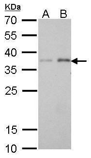 PEX19 Antibody (MA5-17281) in Western Blot