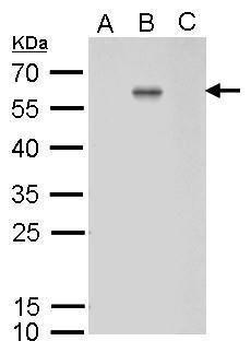 Dengue Virus Type 2 Envelope Antibody (MA5-17291) in Western Blot