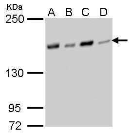 NFKBIL2 Antibody (MA5-17292)