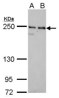 NuMA Antibody (MA5-17293) in Western Blot