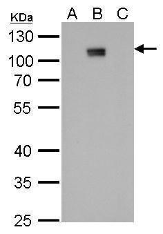 Dengue Virus Type 2 NS5 Antibody (MA5-17295) in Western Blot