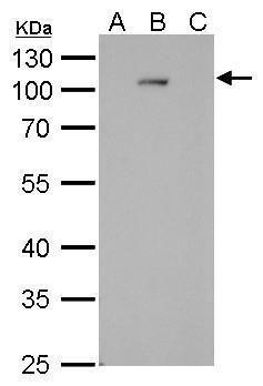 Dengue Virus Type 2 NS5 Antibody (MA5-17296) in Western Blot