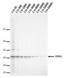 LCMT1 Antibody (MA5-18059)