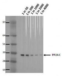 PP2A alpha Antibody (MA5-18060)