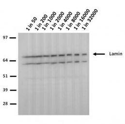 Lamin A/C (mutant 453W) Antibody (MA5-18063)