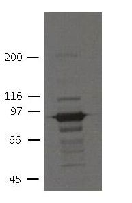 PKP3 Antibody (MA5-18080) in Western Blot