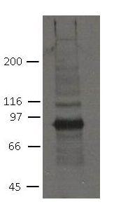 PKP2 Antibody (MA5-18081) in Western Blot