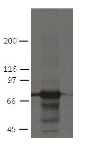 PKP1 Antibody (MA5-18082) in Western Blot