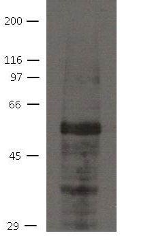 AJUBA Antibody (MA5-18087) in Western Blot