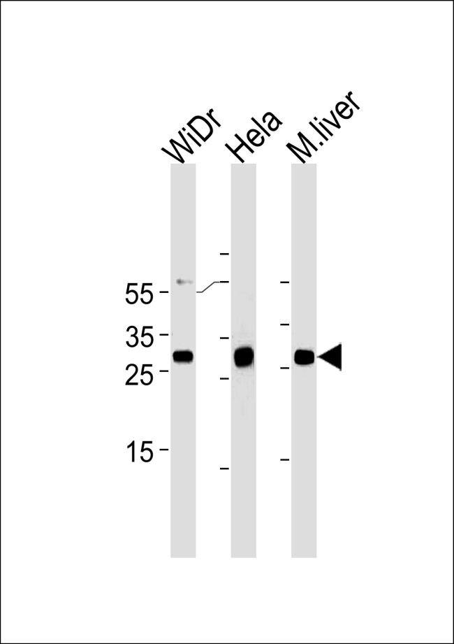 CDX1 Antibody (MA5-18113) in Western Blot